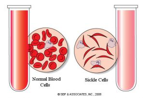 Sickle cell test